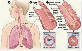Children's Asthma